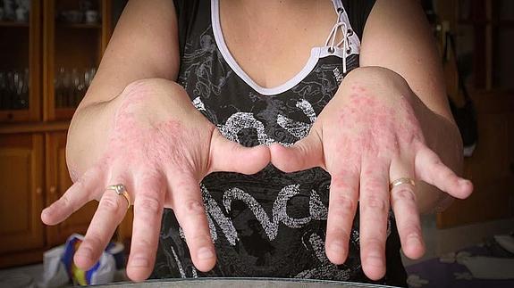 Imagenes de psoriasis en las manos